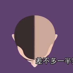 人为什么会秃顶 脱发原因讲解视频